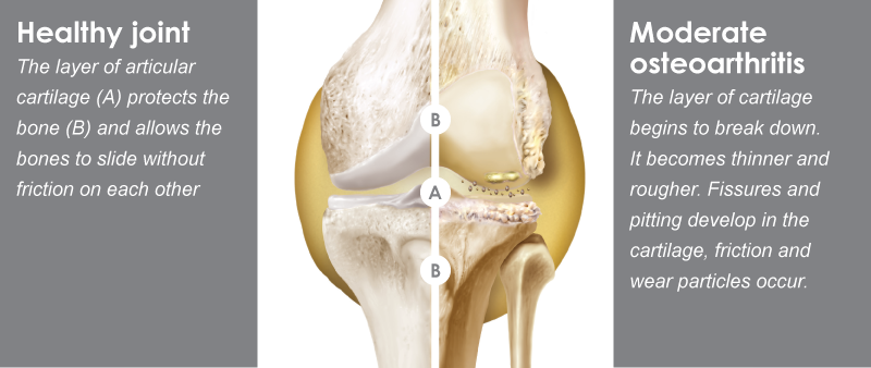 knee-website
